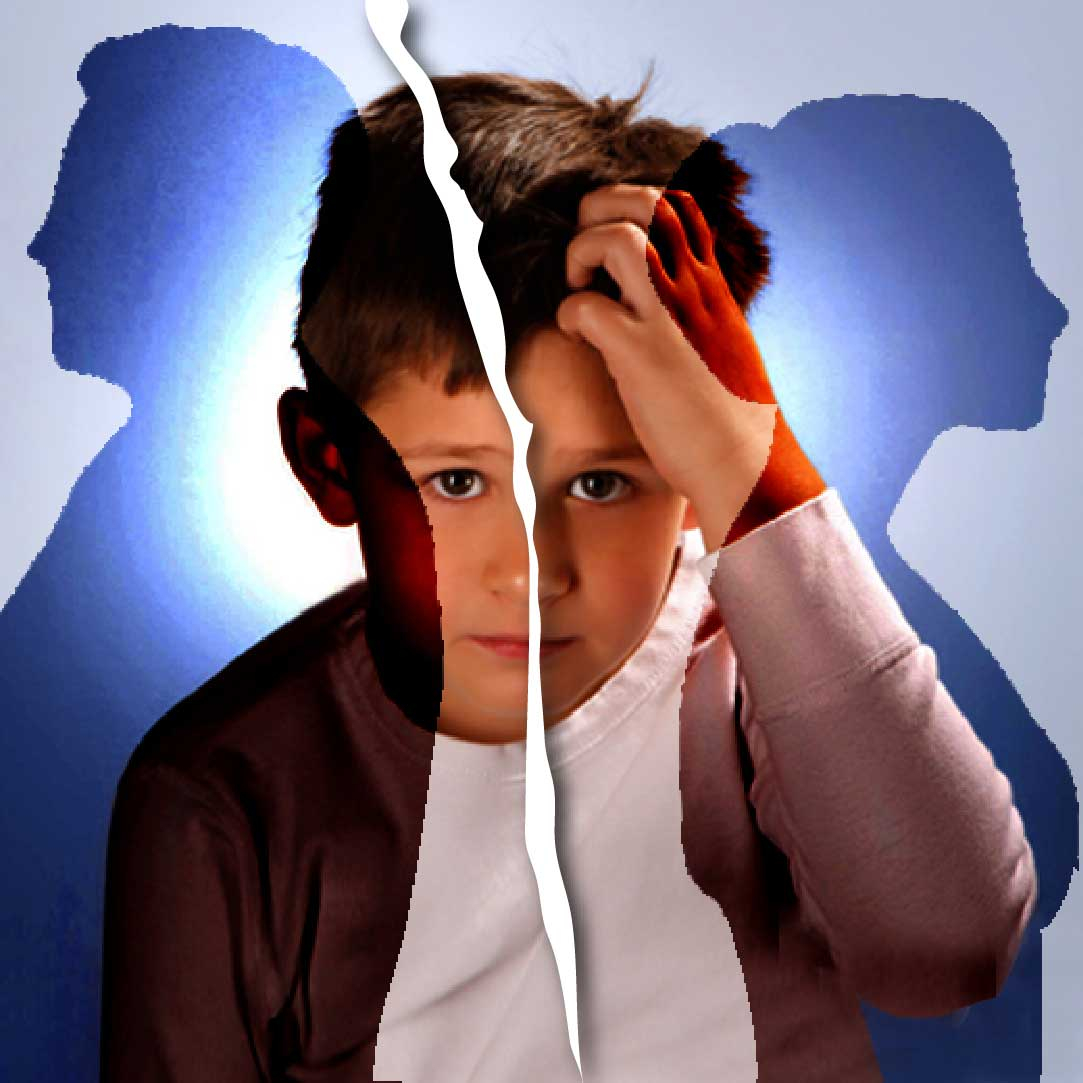 child with mental retardation Information on children with mental retardation resources to types of mental retardation and outcomes.